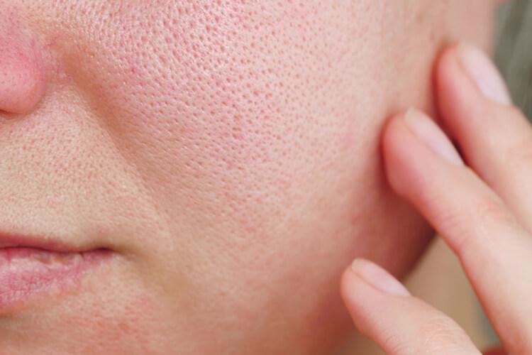 肌 の 赤み 原因